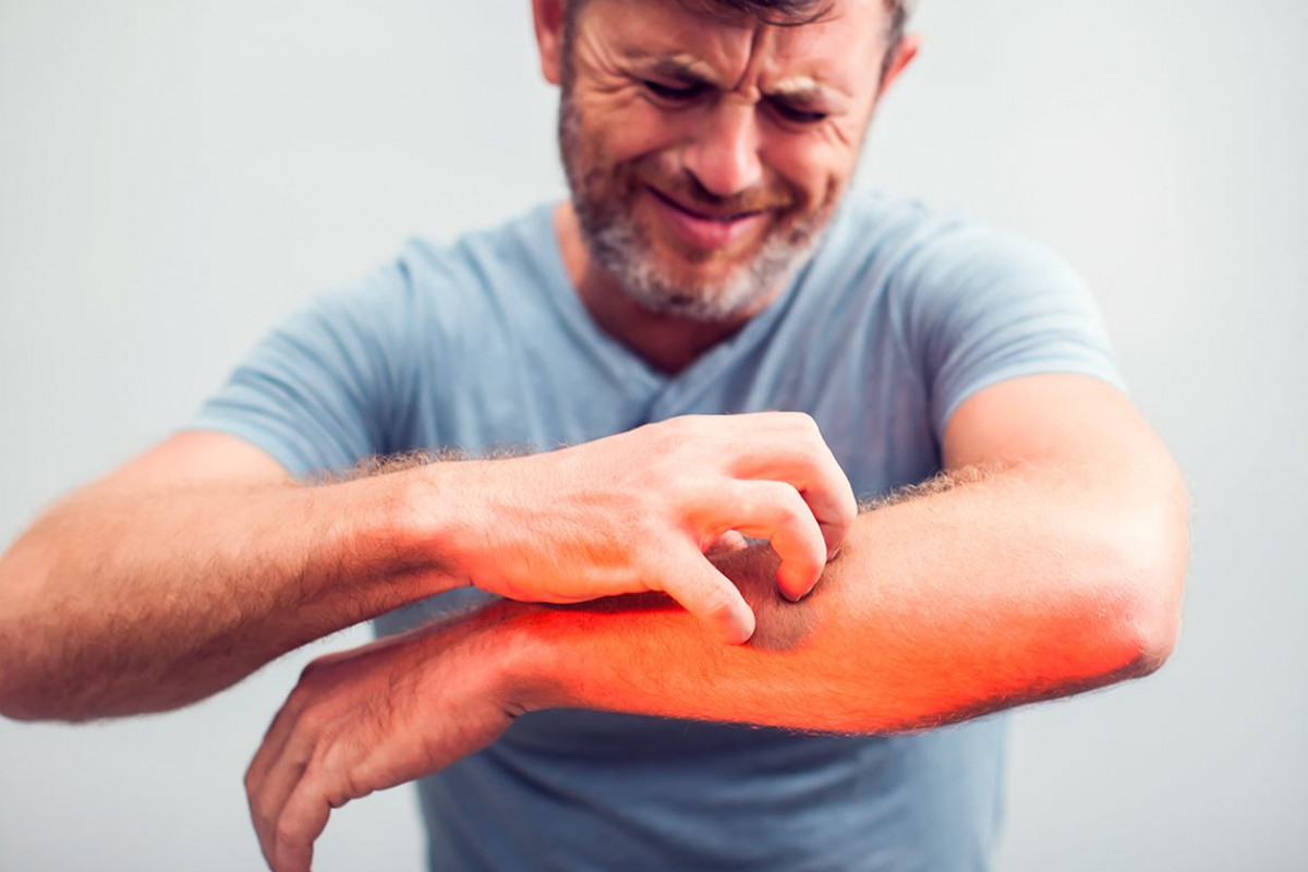 How to Manage Itchy Skin Caused by MPNs