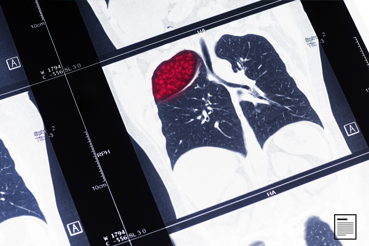 Treatment Options for KRAS Lung Cancer