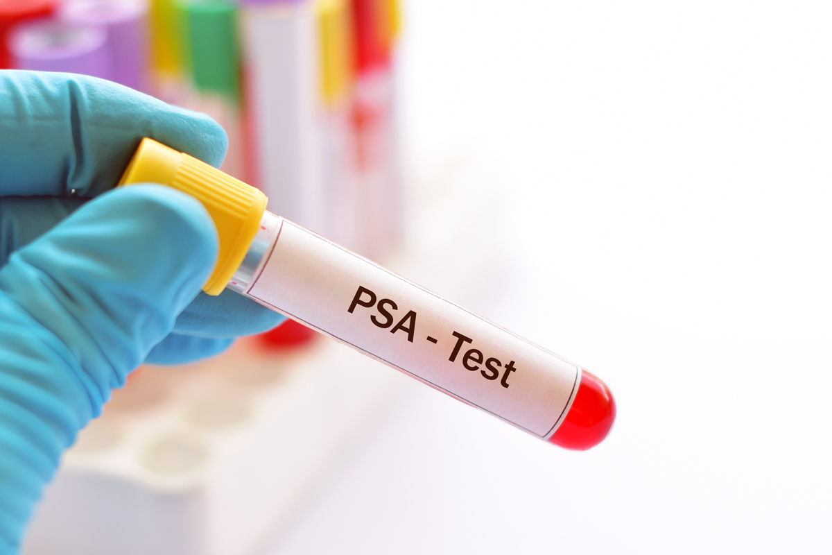 Is PSA Figured As a Percent to Total Blood Volume?