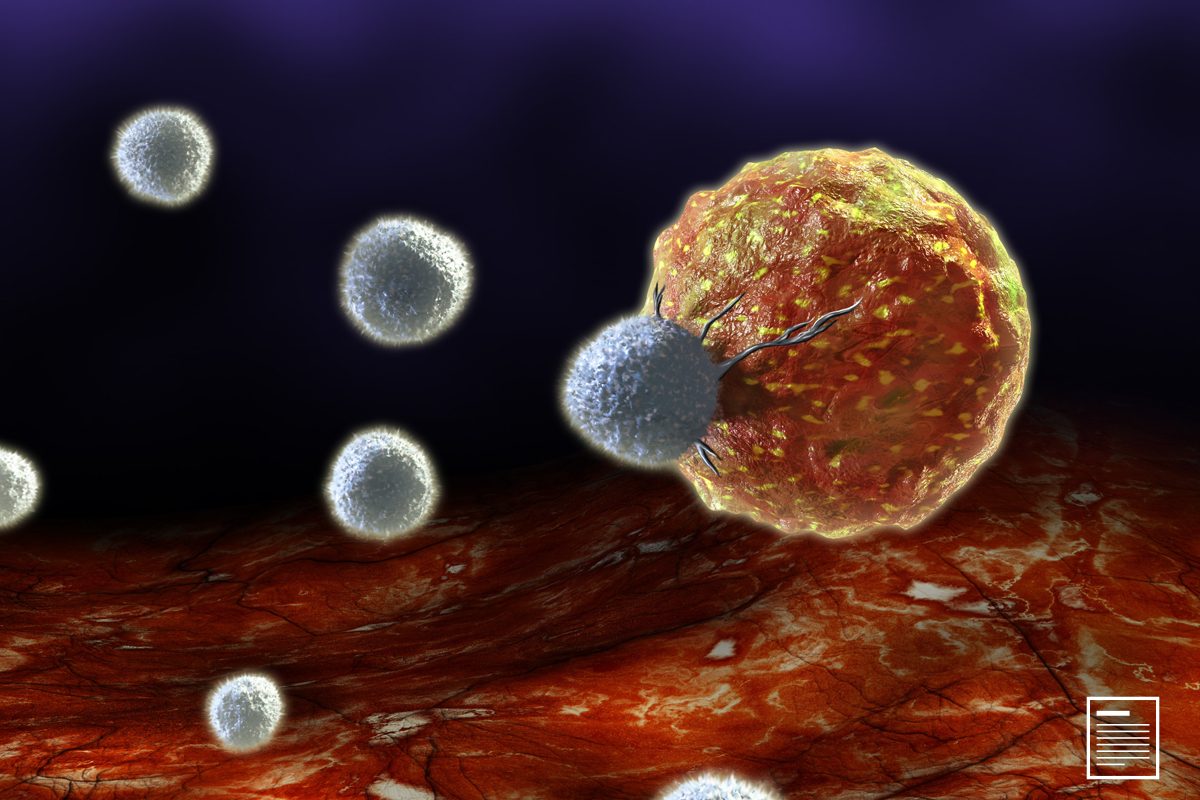 CAR T-Cell Therapy Benefits Patients with Relapsed NHL