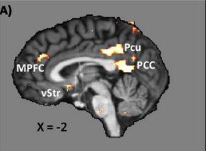 brain scan A