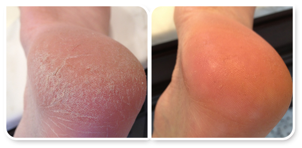 Cracked heels, before and after