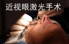 Considering LASIK Eye Surgery