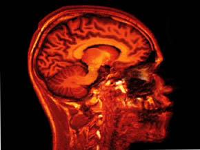 Thumb_science_ou_fiction_cerveau