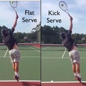 Flat vs kick serve
