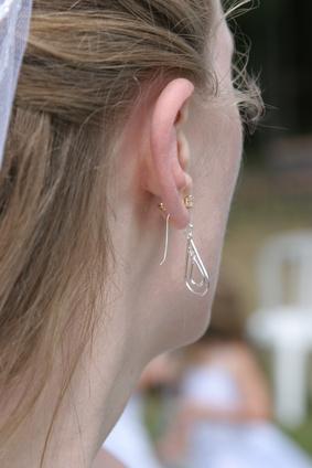 Pierced Ear Infections