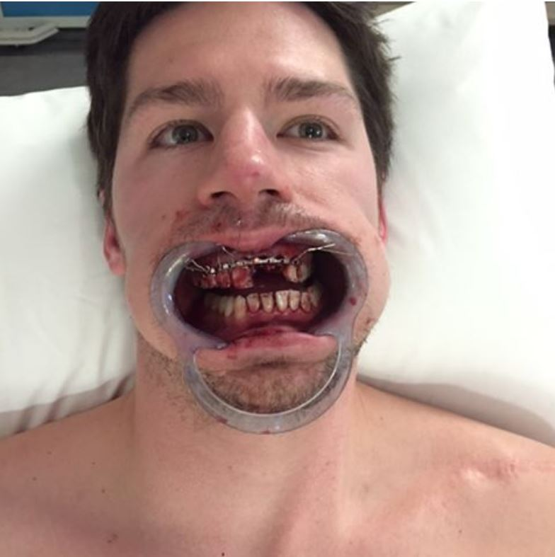 7be9182c3a1 I talked about this the other day on the rundown after Logan Couture got  his face mashed in by a puck. And I got reminded of it again last night  after ...