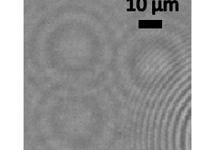 Nano-lens image of virus