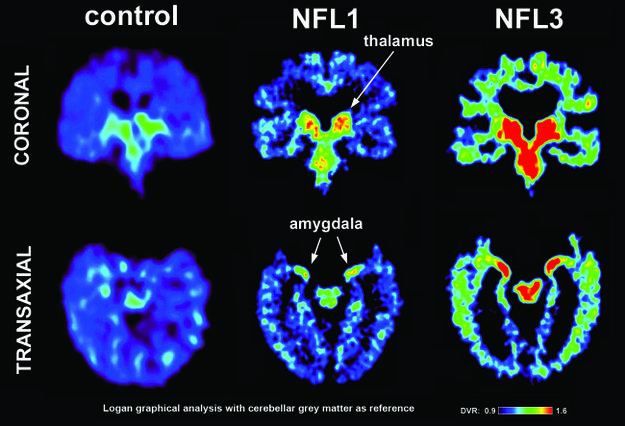 PET brain scans