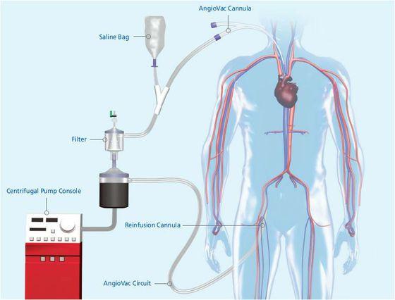Diagram of AngioVac system
