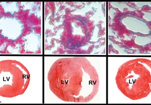 Click to open the large image: Lung and heart with microRNA-193