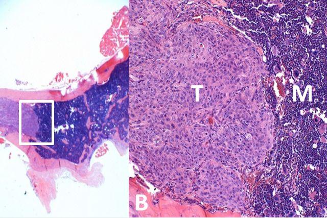 Prostate cancer metastasis in bone