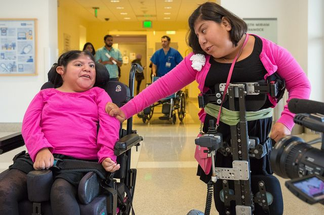 Twins Teresita and Josie Alvarez, who were born joined at their heads