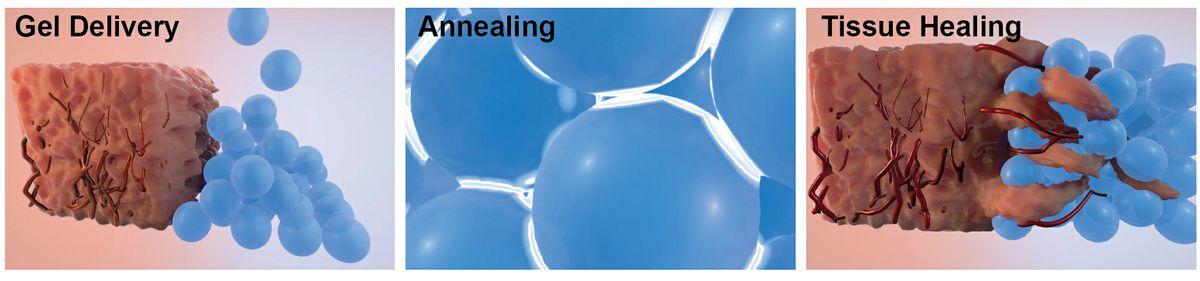 wound-healing-HSSEAS-2015