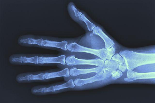 Fractured wrist