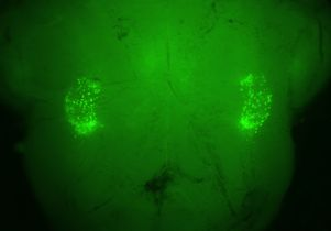 Neurons that control sighing