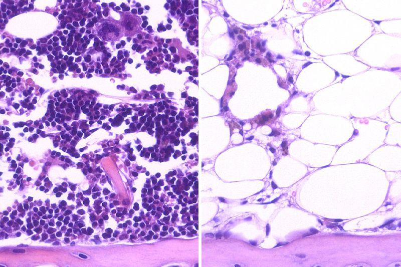 Blood-forming stem cells