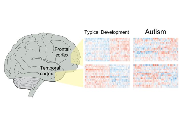 Brains Of People With Autism Spectrum >> Brains Of People With Autism Spectrum Disorder Share Similar