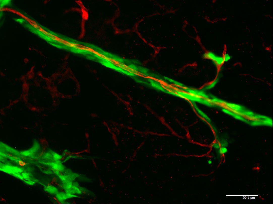 Melanoma cells spreading