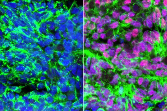Neurons - retinoic acid