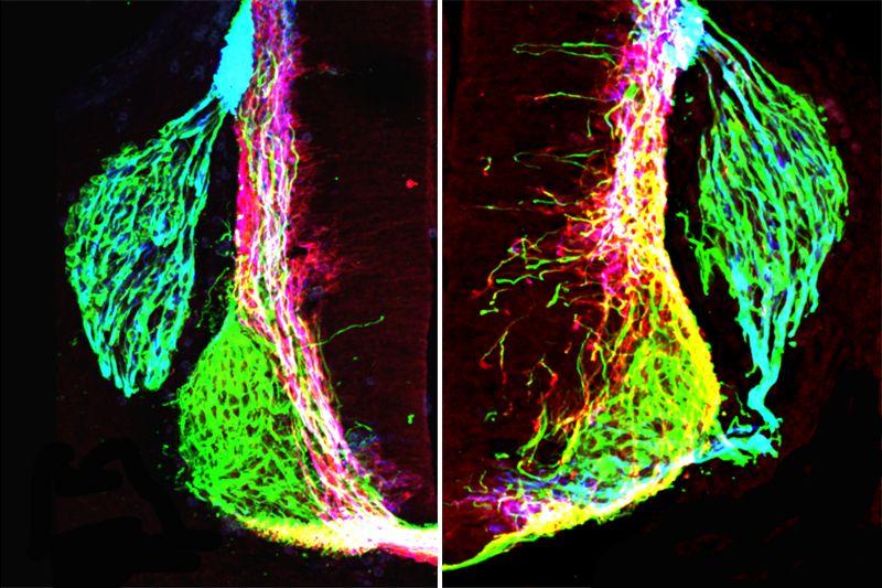 Netrin1 and axon growth