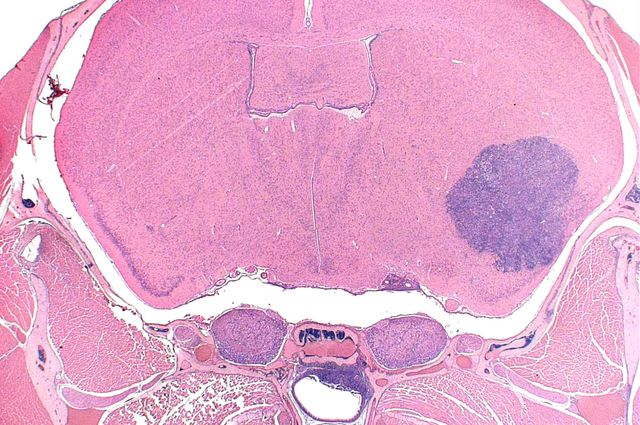 Mouse brain rhabdoid tumor