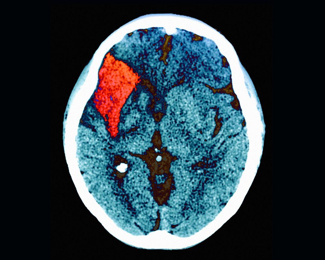 CT scan of stroke patient
