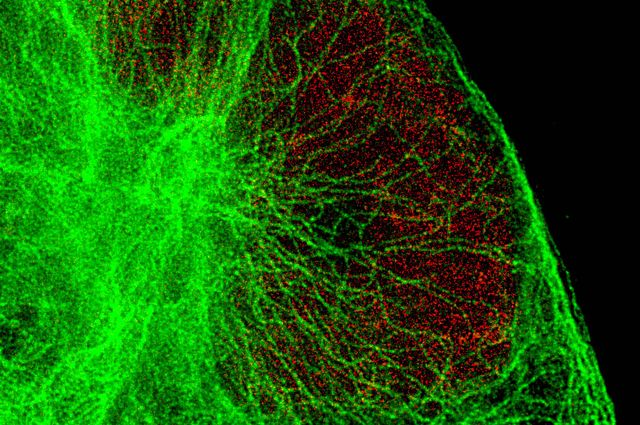 Human cell at super resolution