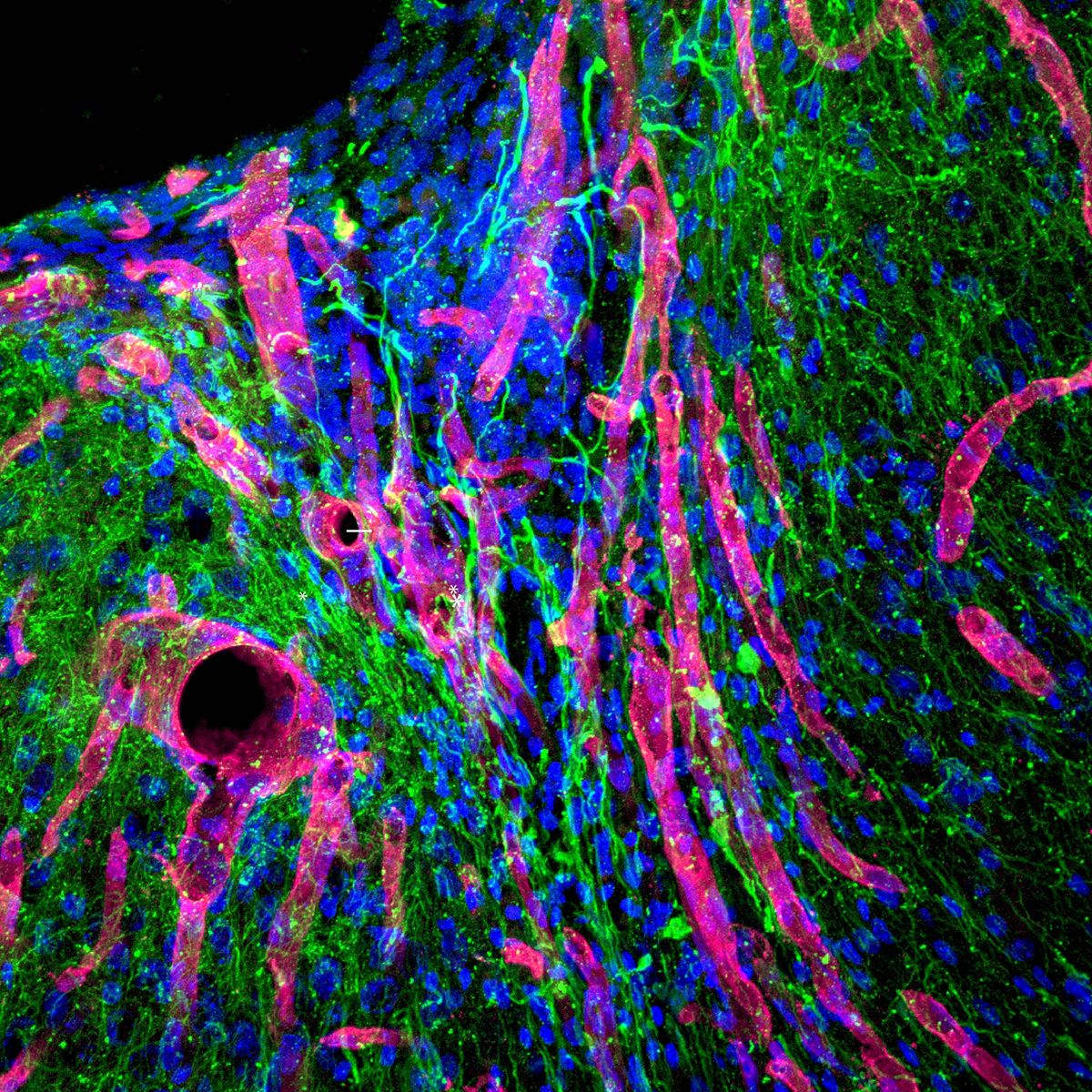 Biomaterial developed at UCLA helps regrow brain tissue