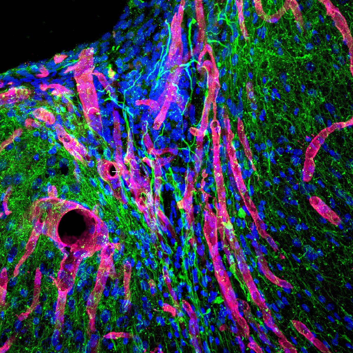 New tissue in brain