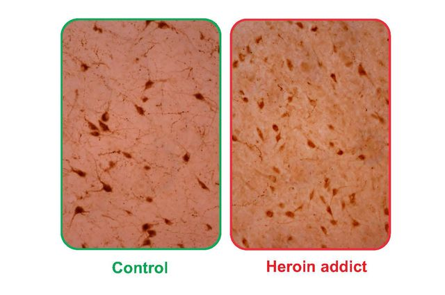 Control and heroin addiction