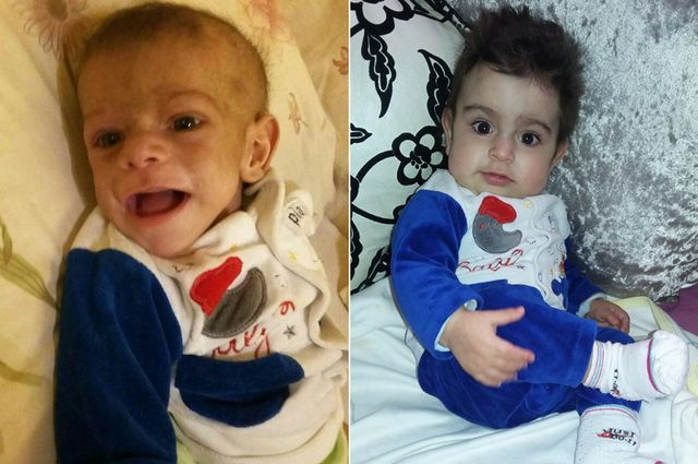Hussein before and after procedure