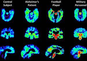 Brain scan comparisons