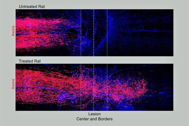 Rat axons