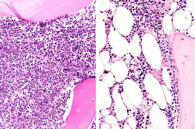 Bone marrow before and after chemotherapy