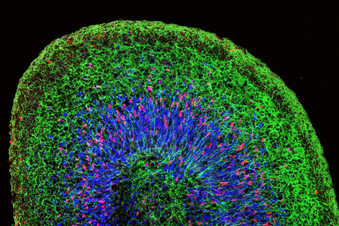 Microscopic image of a mini brain organoid generated from human induced pluripotent stem cells.