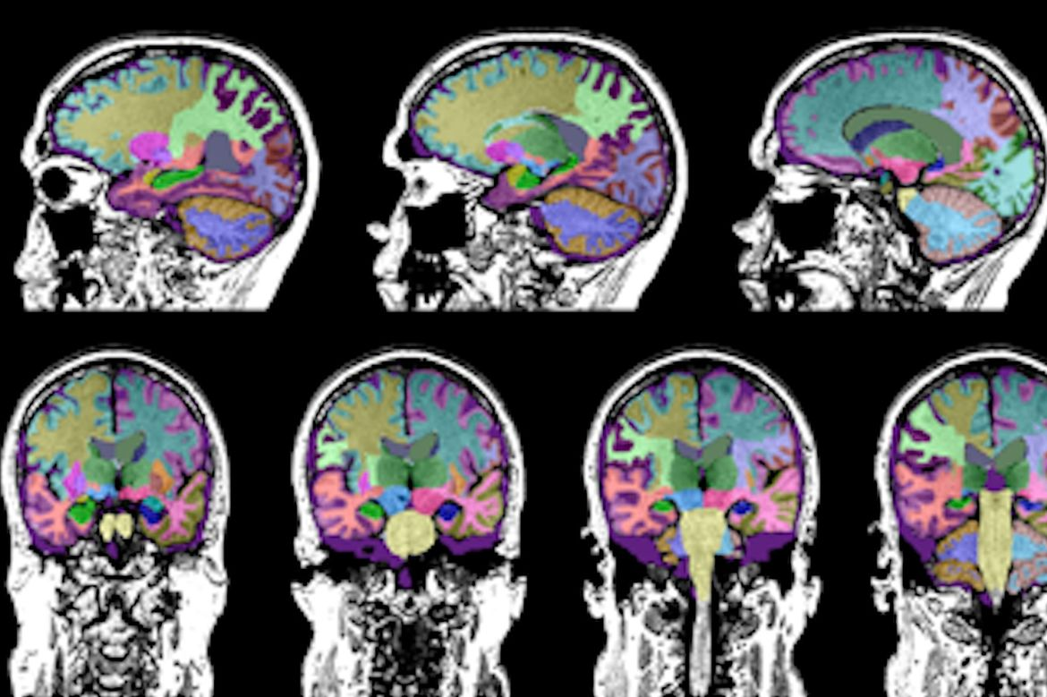 Brain scans for dementia study