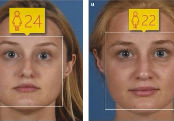 woman-rhinoplasty