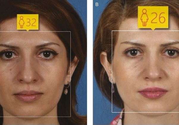 Before and after rhinoplasty-age 32
