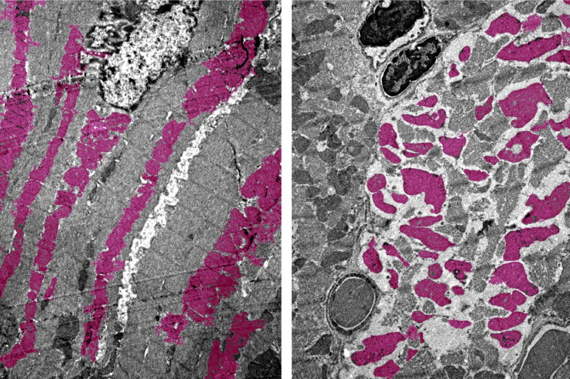 Heart muscle cells in mice