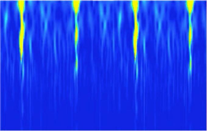 Neuron choir