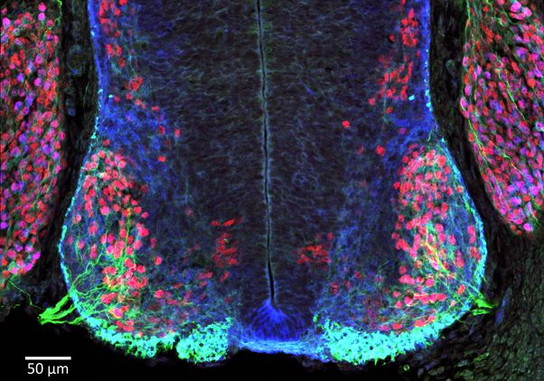 Embryonic spinal cord