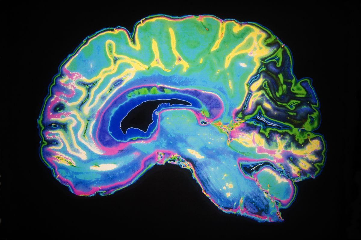 Colorful image of brain