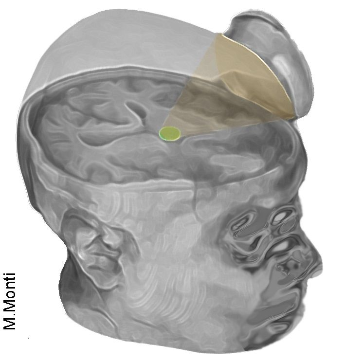 An image of a small device to aim ultrasound at the thalamus in the brain