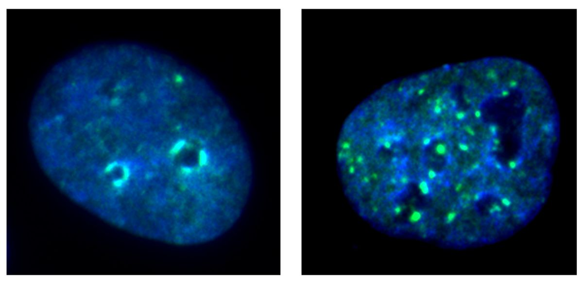 Images of cells with and without KDM4A