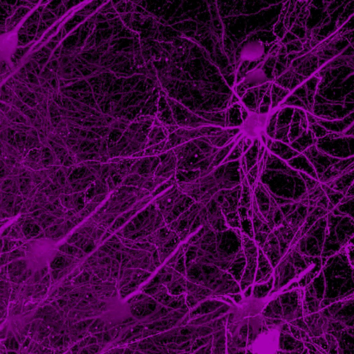 Neurons in a key circuit