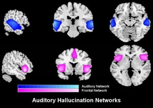 Schizophrenia patients who frequently hallucinate were given a brain scan and the team identified two key brain networks related to their hallucinations.