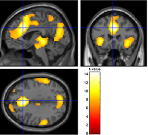 Sample activity in a brain image at a time when impulsive behavior is under consideration.