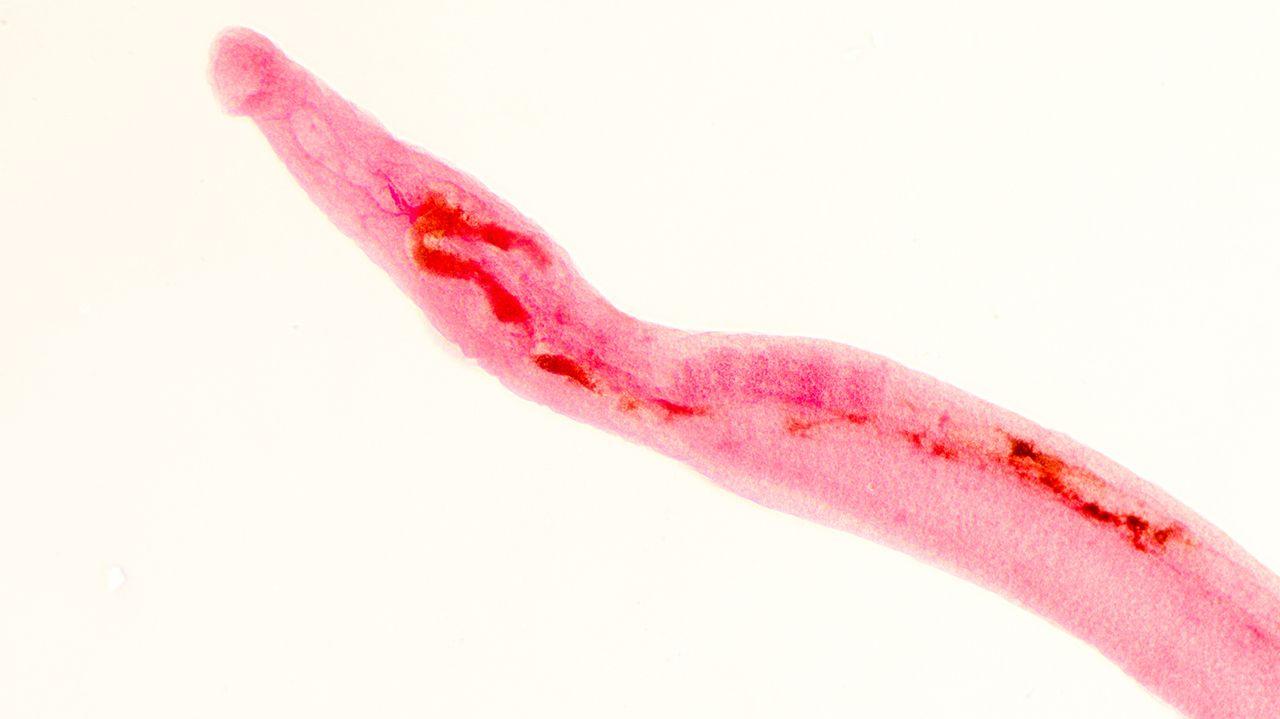 Schistosoma Parasite