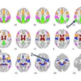 Brain-scan data discovery could revolutionize treatment of bipolar disorder & depression